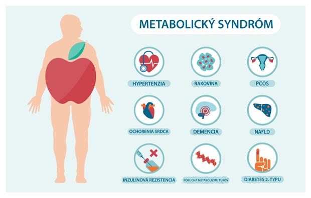Vsetky-mozne-ochorenia-vychadzajuce-z-metabolickeho-syndromu-Metasyn-aone 120kps